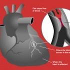 Afgestorven hartcellen vernieuwen niet na een hartinfarct