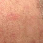 Huidgezwellen met verhoogd risico op huidkanker