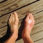 Jicht: Ziekte met pijn aan grote teen en andere gewrichten