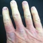 Raynaudfenomeen: Wijzigingen in huidskleur met koude en pijn