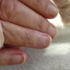 Terry's nagels: witte nagels met een donkere of bruine rand