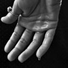 Klamme huid: Oorzaken en symptomen van klam aanvoelende huid