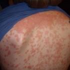 Psoriasis guttata: Druppelvormige vlekken op huid met jeuk