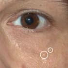 Syringomen: Bultjes (zweetkliergezwellen) rond ogen & wangen