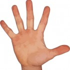 Jersey vinger: Scheur in buigpees van vinger met pijn