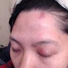 Huiduitslag rond ogen: Oorzaken, symptomen en behandelingen