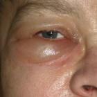 Gezwollen ogen: oorzaken en behandeling zwelling rond ogen