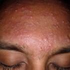 Huiduitslag voorhoofd: symptomen van rode vlekken of bultjes