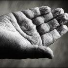 Tinea nigra: Donkere vlek in handpalmen door gist (schimmel)