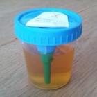 Troebele urine: oorzaken troebele plas met een sterke geur
