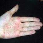 Blaasjes op de handen: oorzaken blaasjes op handpalmen