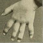 Dactylitis: Gezwollen vingers en/of tenen door aandoening
