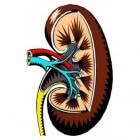 Schrompelnier: Gekrompen nier door nierziekte (nieratrofie)