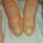 Gezwollen vingers: oorzaken en behandeling opgezette vingers