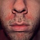 Droge rode schilferige huid rond neus: oorzaken en symptomen