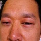 Wallen onder de ogen (oogwallen): Oorzaken en behandeling