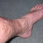 Spataders: Oorzaken en behandelingen van spataderen in benen