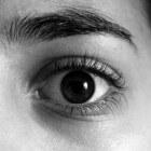 Orbitale pseudotumor: Oogkasaandoening met zwelling weefsels