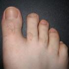 Dikke teennagels: oorzaak en behandeling verdikte nagels