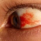 Rode vlek in oog: oorzaken en symptomen van bloed in het oog