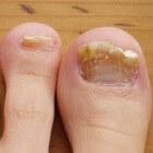 Teennagel zit los of nagel valt eraf: oorzaken & behandeling