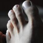 Zwarte teennagels: Oorzaken van zwarte verkleuring teennagel