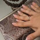 Trachyonychia: Nagelaandoening met ruwe nagels