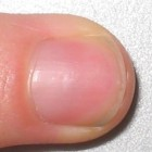 Gespleten nagels: oorzaken gebarsten of splijtende nagels