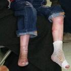 Epidermolysis bullosa: Huidaandoeningen met blaren