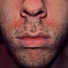 Seborroïsch eczeem: Huidziekte met hoofdroos en rode huid
