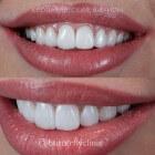 Pijnlijke lippen: oorzaken en behandeling brandende lippijn