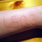 Dermatografie: Tijdelijke galbulten na bekrassing van huid