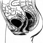 Spastische bekkenbodem syndroom: symptomen en behandeling