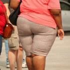 Obesitas (zwaarlijvigheid): Risicofactoren voor overgewicht
