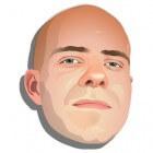 Alopecia totalis: Volledig verlies van haar op hoofdhuid