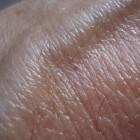 Flebitis, een pijnlijke aderontsteking: behandeling