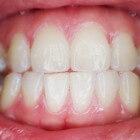 Donker tandvlees: Oorzaken van zwarte of bruine verkleuring