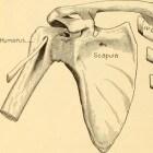 Gebroken schouder: symptomen, oorzaak, behandeling & herstel