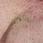 Mee-eters (open comedones): Kleine zwarte bultjes op gezicht