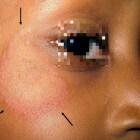 Tinea faciei: Schimmelinfectie met rode vlekken aan gezicht