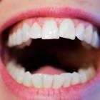 Witte vlekken op tandvlees of wit tandvlees: Oorzaken