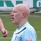 Alopecia universalis: Totale haaruitval op hele lichaam