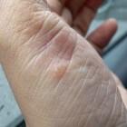 Palmoplantaire pustulose: Blaren op handen en/of voeten