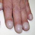 Trommelstokvingers: symptomen en oorzaken horlogeglasnagels