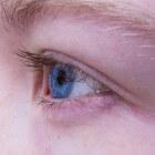 Droge oogleden: oorzaken en behandeling van schrale oogleden