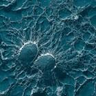 Staphylococcus aureus-bacterie: Soorten bacteriële infecties