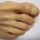 Schimmelnagel (onychomycose): Oorzaken van schimmelinfectie