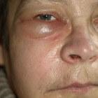 infectie gezicht