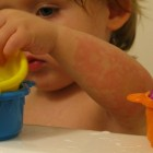 Tinea incognito: Schimmelinfectie huid door corticosteroïde