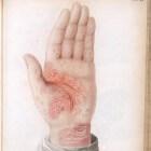 Dermatitis (ontsteking van de huid): Soorten huidontsteking